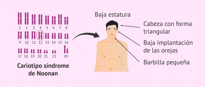 Imagen: sindrome-de-noonan-glosario