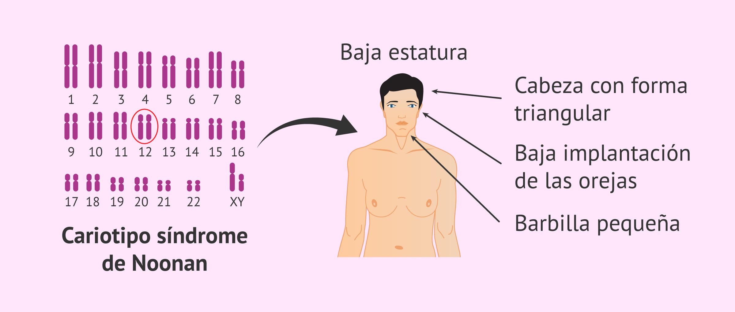 sindrome-de-noonan-glosario