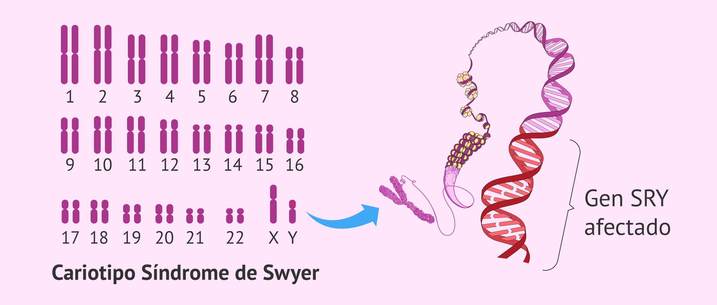 Cariotipo en el síndrome de Swyer