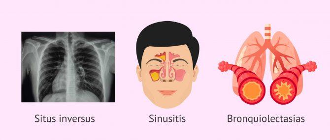 Imagen: Triada clínica del Síndrome de Kartagener