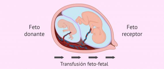 Imagen: Riesgos del embarazo de trillizos