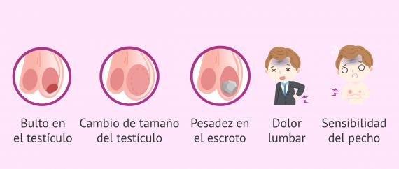 Imagen: Sintomas del cáncer de testiculo