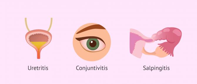 Imagen: sintomas-clamidia-uretritis-conjuntivitis-salpingitis
