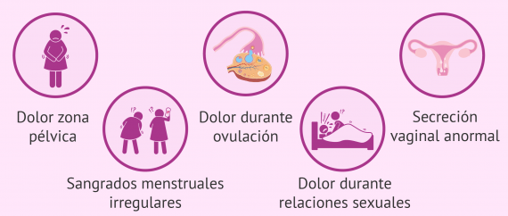 Imagen: Síntomas de la salpingitis