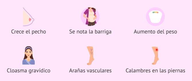 Imagen: Síntomas en el tercer mes de embarazo