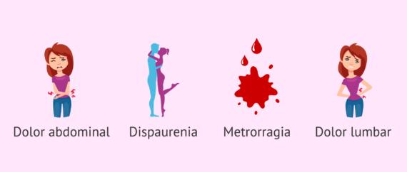 Dolor en endometriosis
