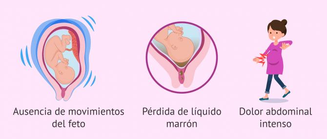 Imagen: Síntomas de la muerte fetal intrauterina