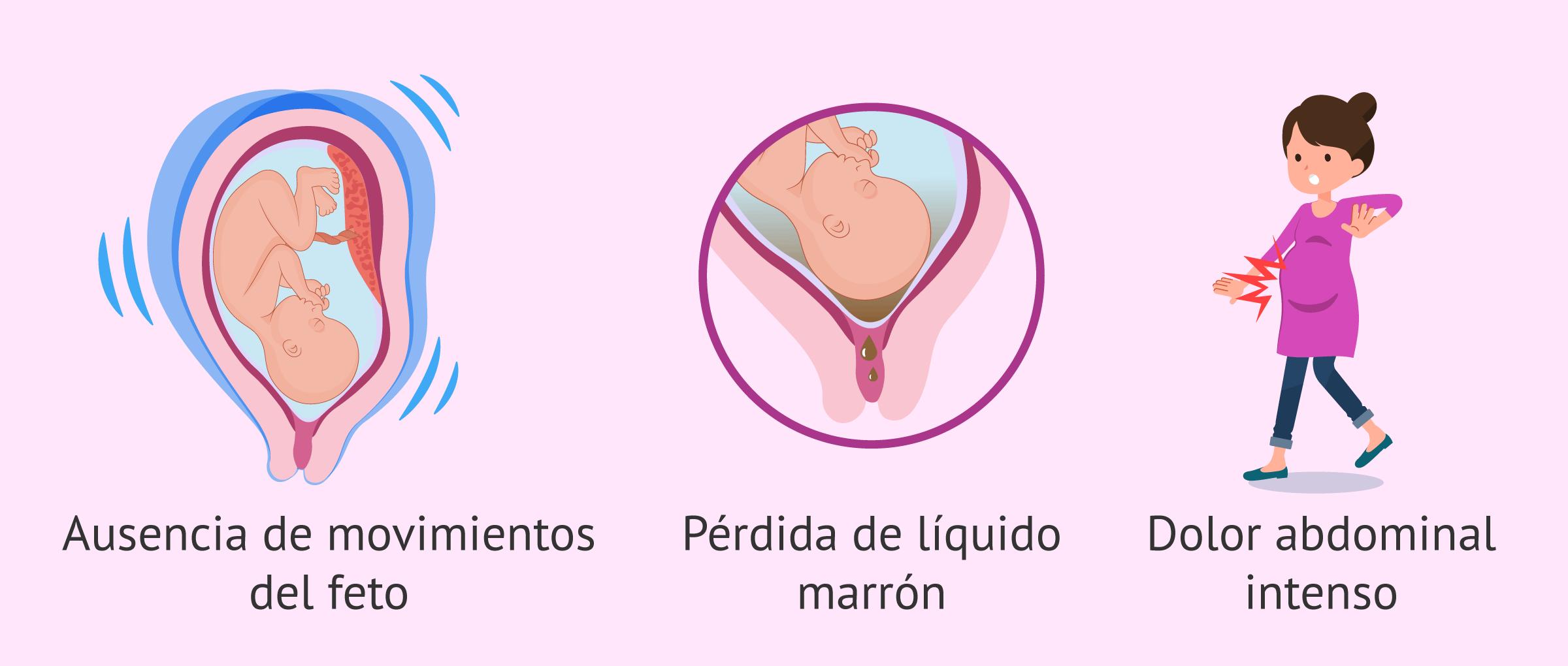 Muerte fetal intrauterina