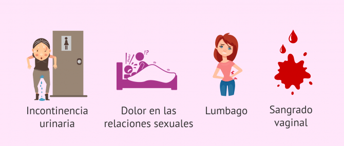 Imagen: Signos y síntomas del prolapso uterino