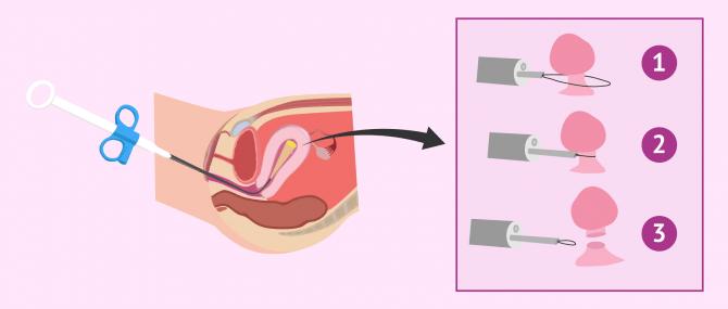 Imagen: Efectos de los pólipos