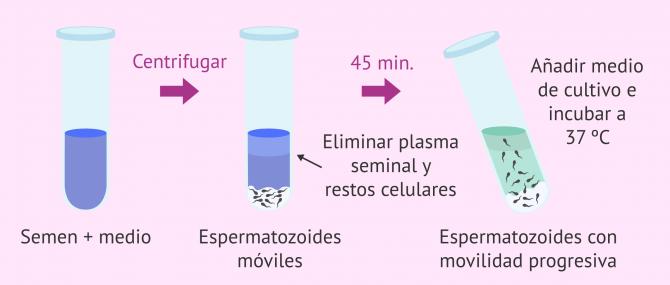 Imagen: swim-up-espermatozoides