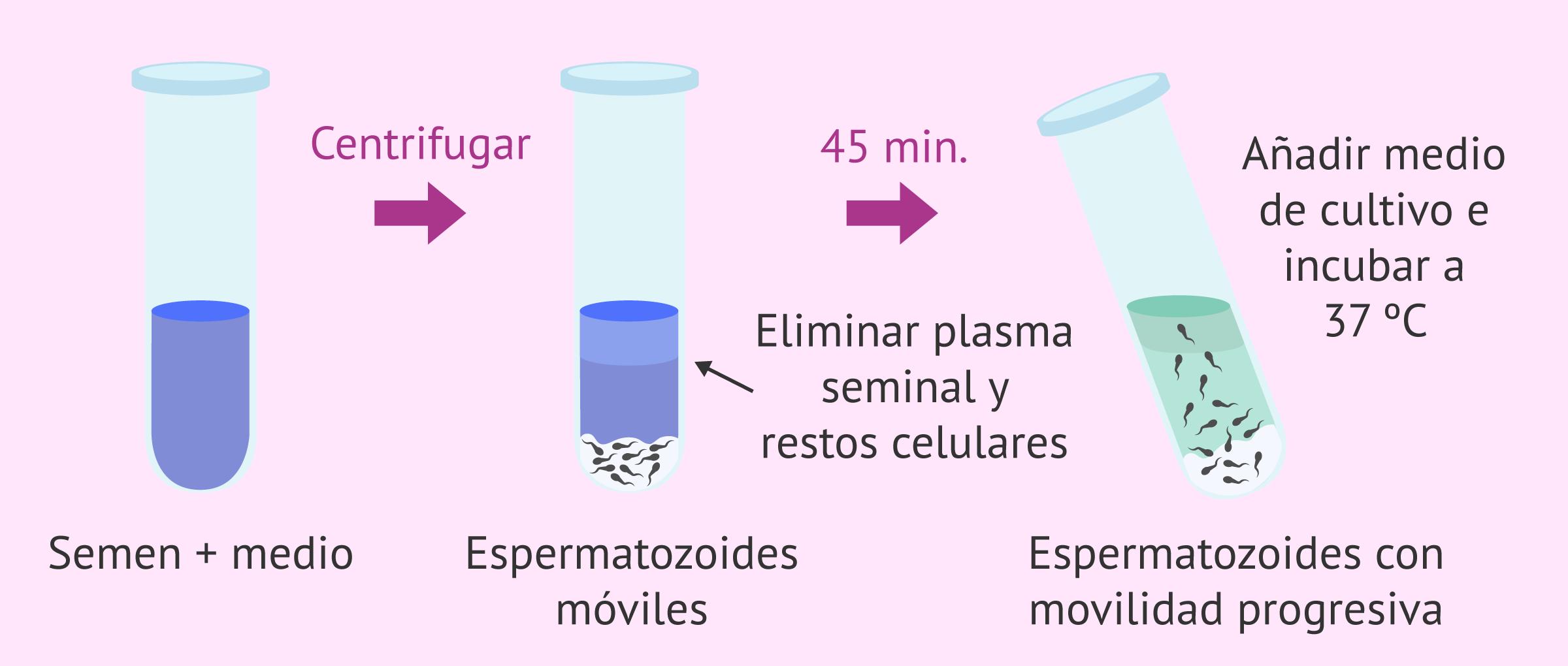 swim-up-espermatozoides