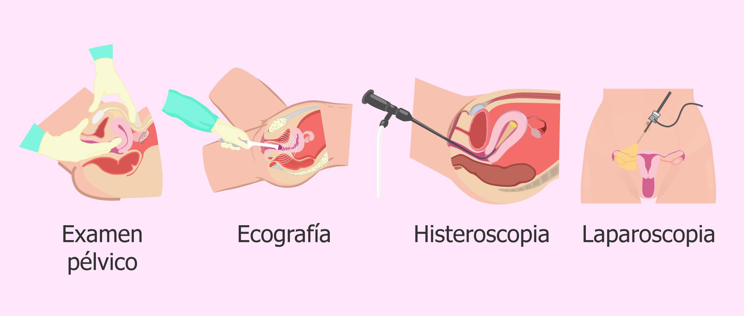 Técnicas diagnósticas para miomas