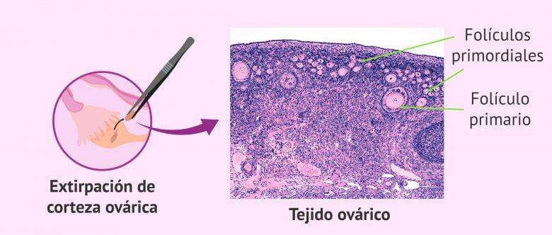 Imagen: Cáncer en el tejido ovárico