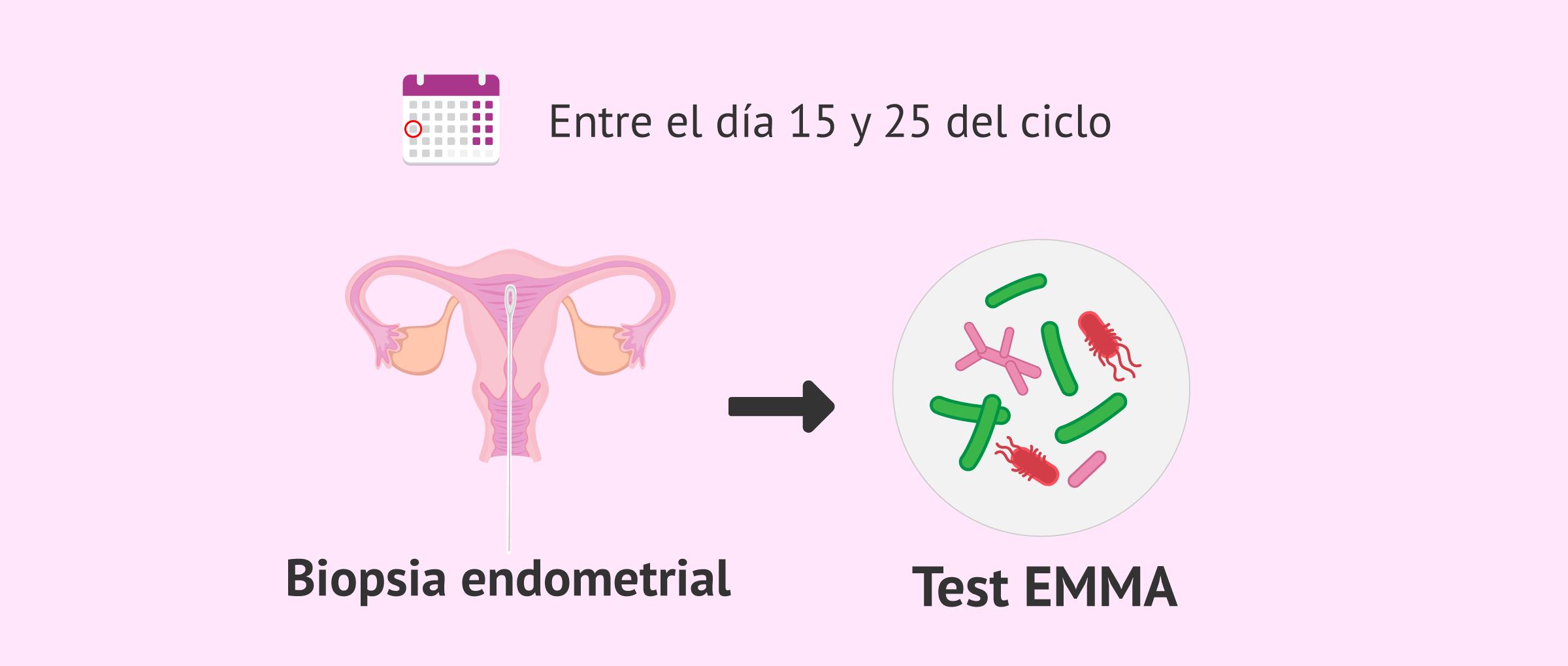test-emma