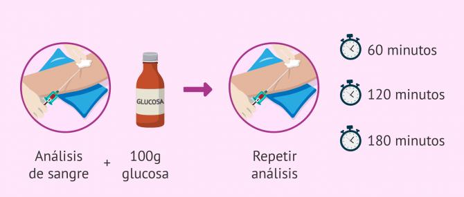 Imagen: Test de O´Sullivan para medir la glucosa
