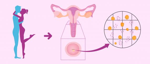 Imagen: Test postcoital para evaluar el factor cervical