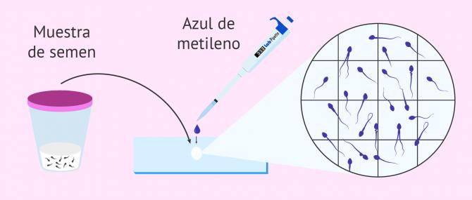 Imagen: Tinción del semen para evaluar la morfología espermática