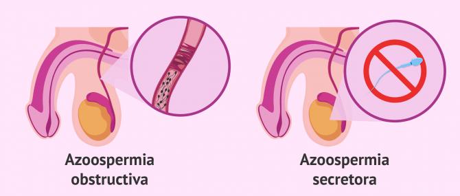 Imagen: Azoospermia secretora y obstructiva