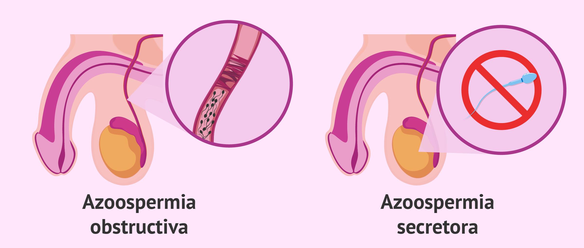 Tipos de azoospermia