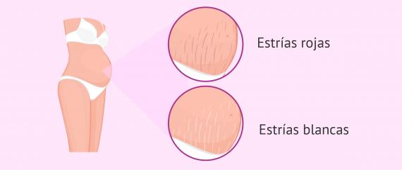 Imagen: Tipos de estrías en el embarazo