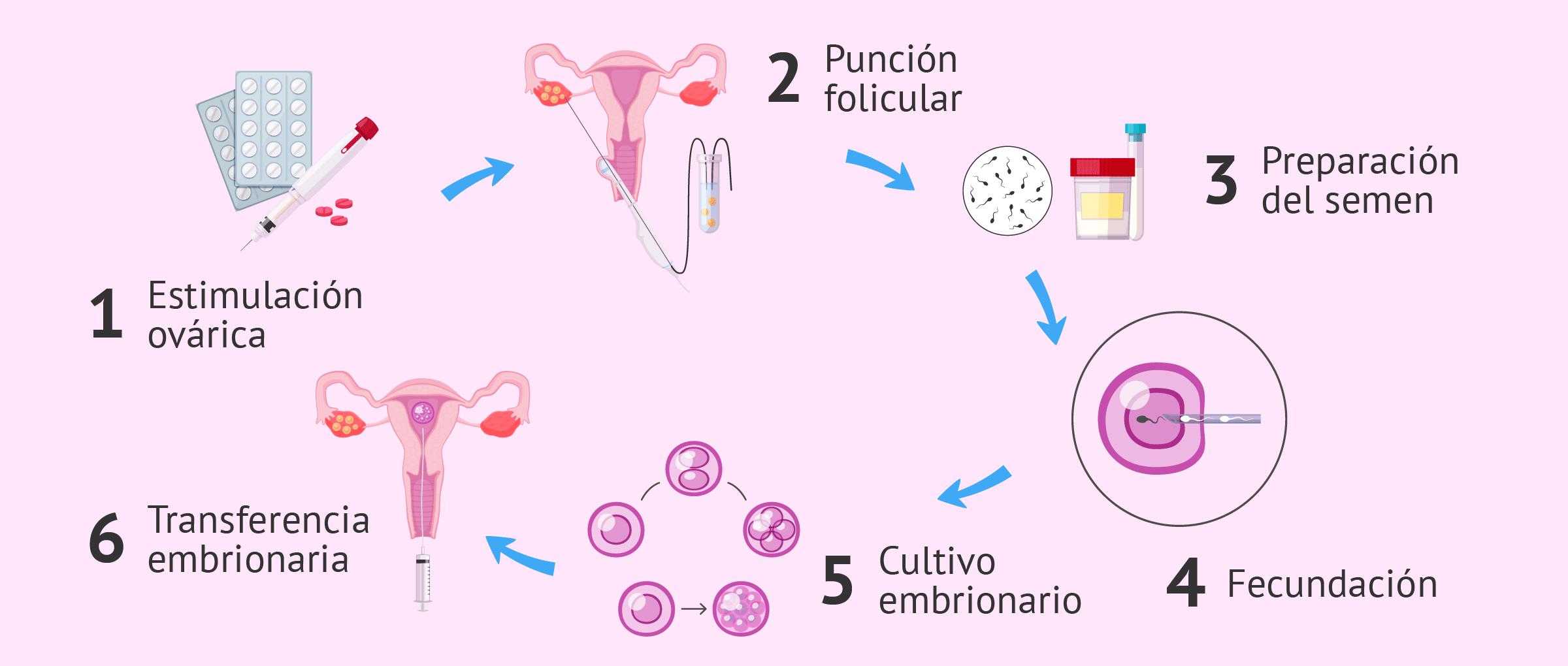 Proceso de fecundación in vitro