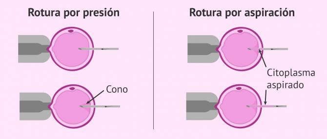 Imagen: Tipos de rotura en una ICSI