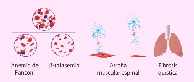 ¿Qué son las enfermedades monogénicas? – Evitarlas con DGP