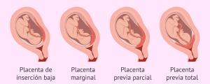 Embarazo con placenta previa.