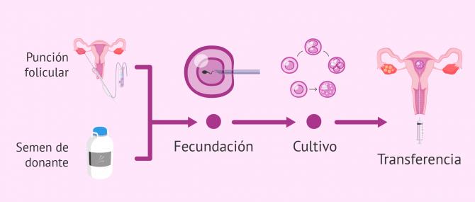 Imagen: Proceso FIV con semen de donante
