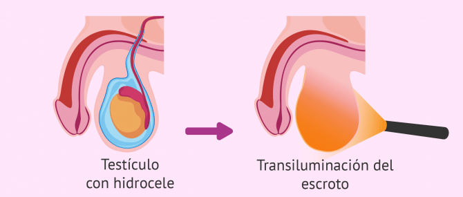Qué es el hidrocele testicular? - Causas, síntomas y tratamiento