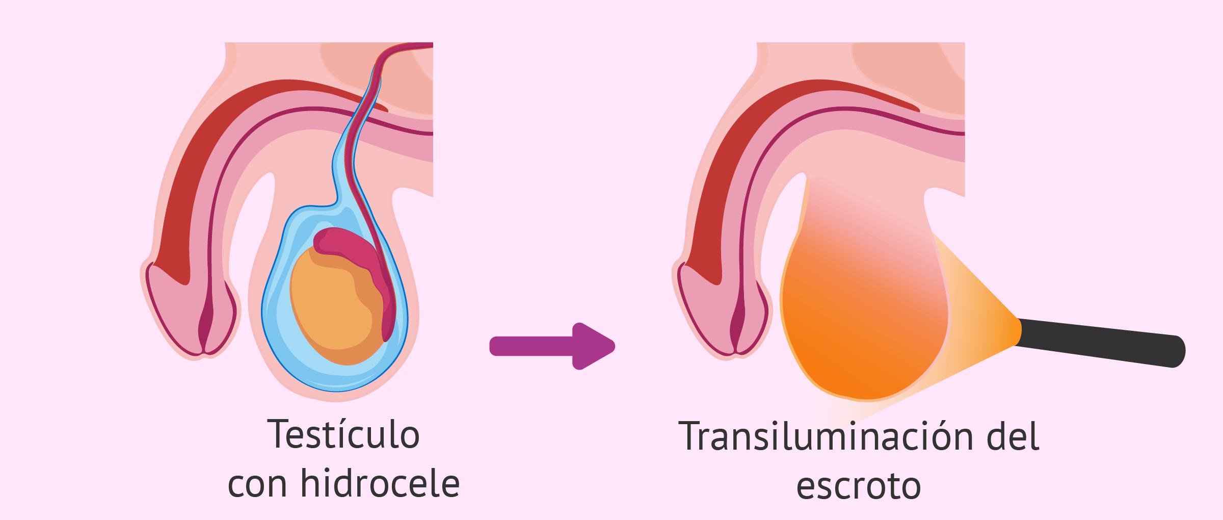 La transiluminación del escroto