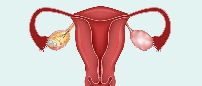 Imagen: En un futuro próximo se podrán realizar trasplantes de útero a mujeres