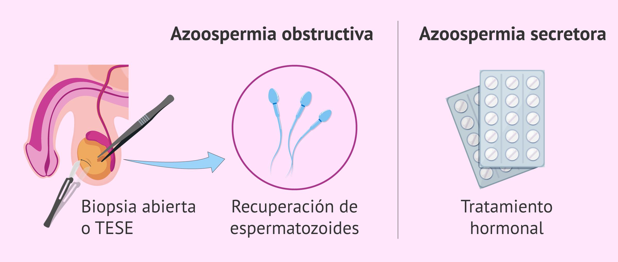Opciones terapéuticas de la azoospermia