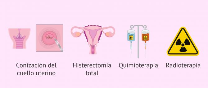 Imagen: Opciones terapéuticas del cáncer de cérvix