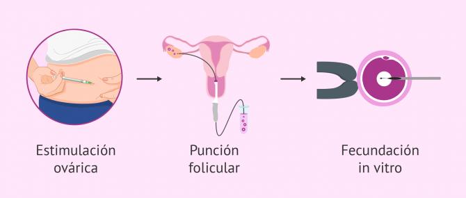 Recomendaciones para empezar un tratamiento de reproducción asistida
