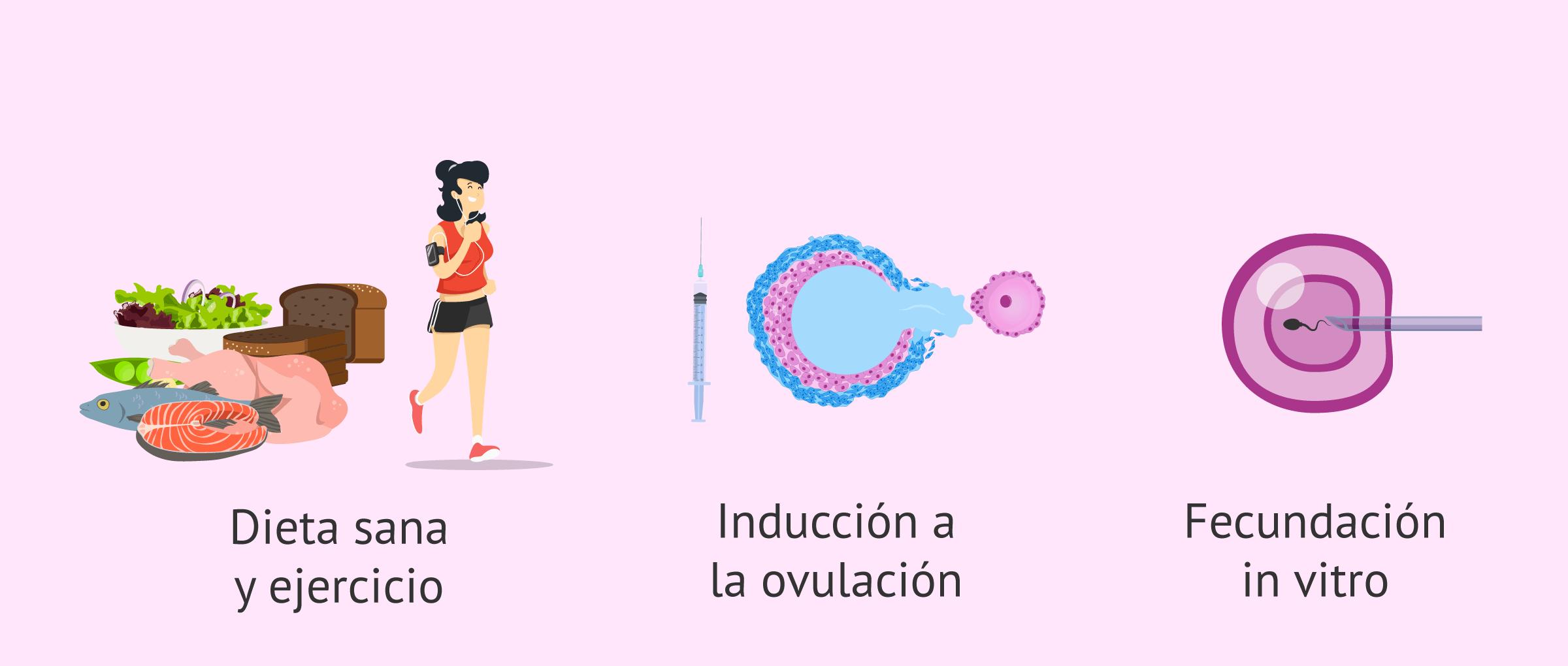 tratamiento-embarazo-sop