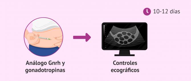 Imagen: Estimulación ovárica en el método ROPA