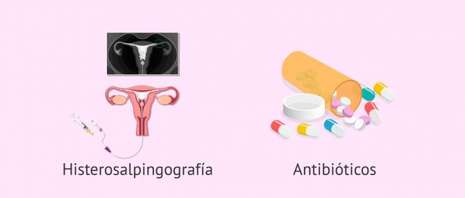 Imagen: Diagnóstico y tratamiento de la salpingitis