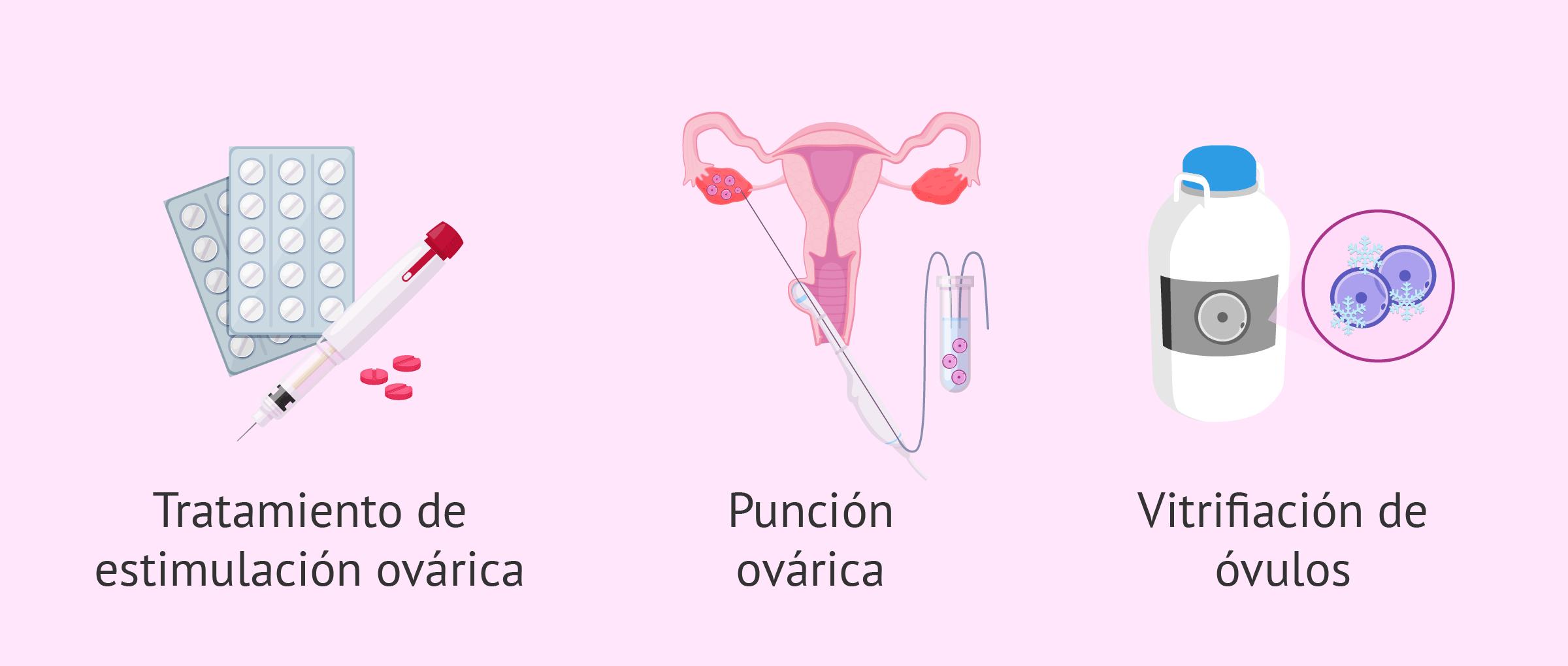 Preservación de la fertilidad en mujeres con cáncer