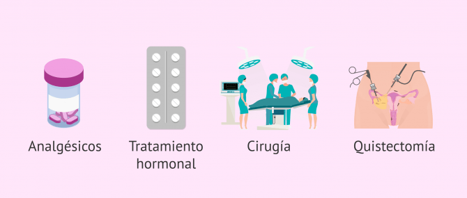 Imagen: Tratamiento de la endometriosis y embarazo natural