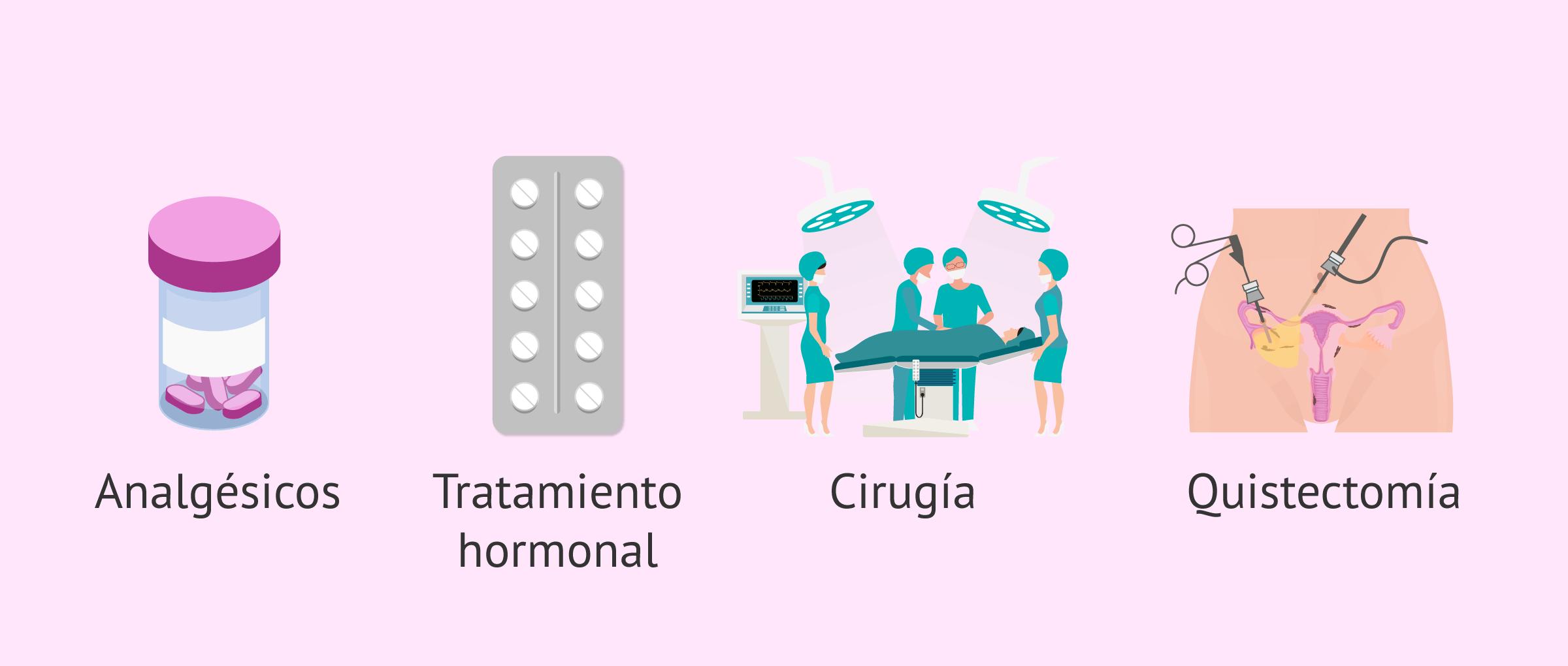 Tratamiento de la endometriosis y embarazo natural