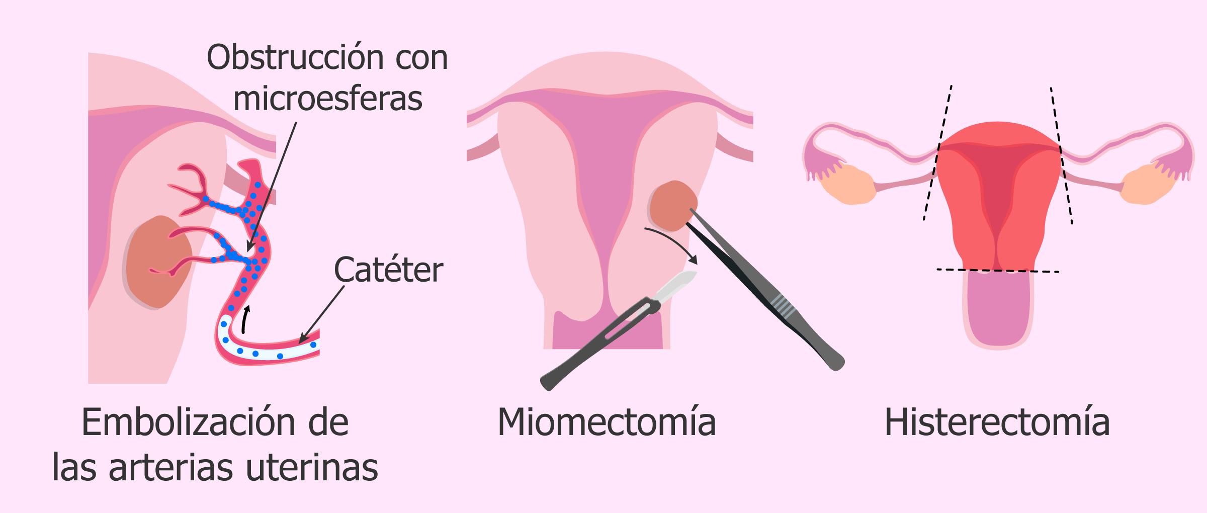 tratamiento para eliminar miomas uterinos