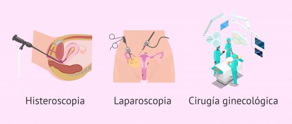 Imagen: Operaciones quirúrgicas en el útero