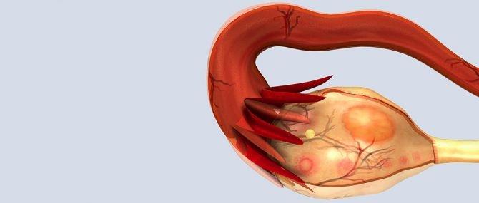 Imagen: Cómo afecta este tipo de cirugía a la fertilidad de las mujeres.