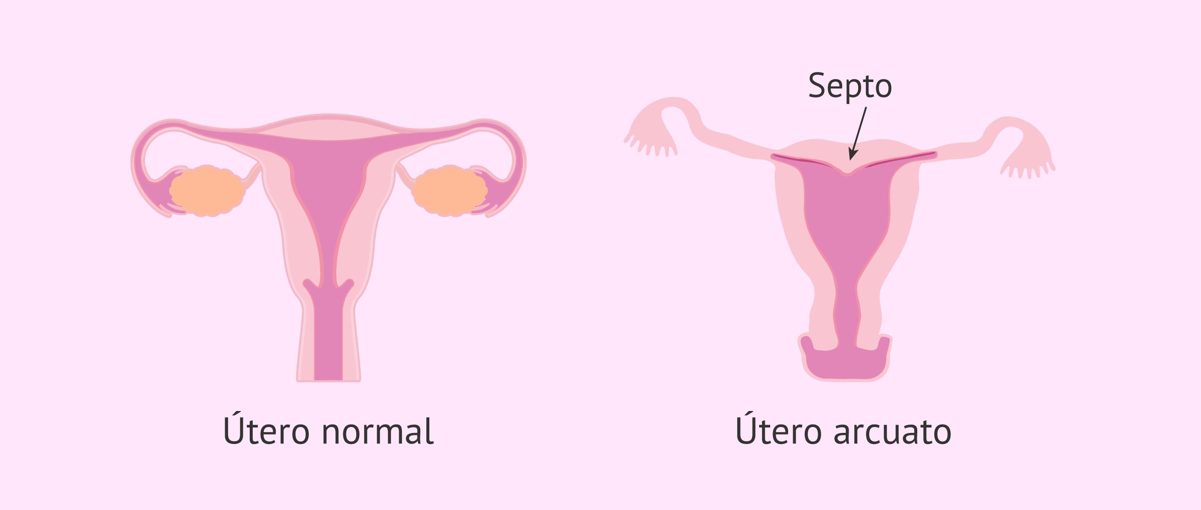utero-arcuato-glosario