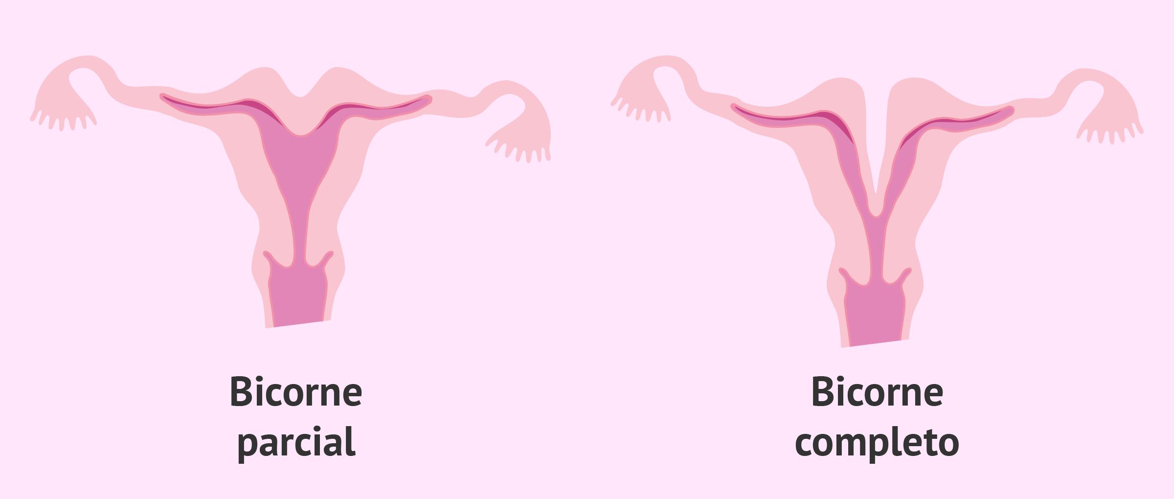 Tipos de útero bicorne