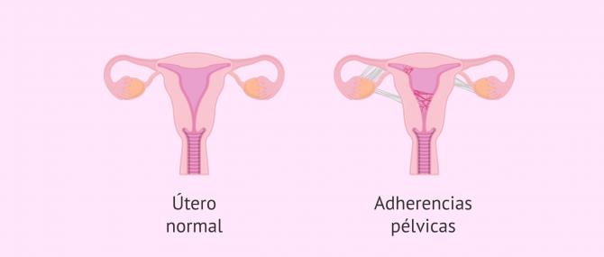 Imagen: utero-con-adherencias-pelvicas