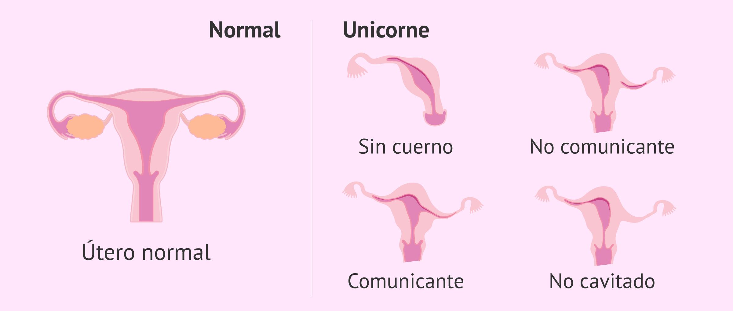 utero-unicorne-glosario