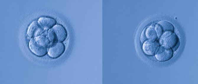 Imagen: Valorar la calidad embrionaria
